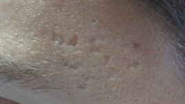 what-causes-acne-scars
