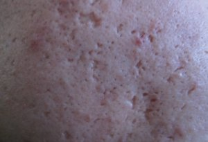 tca cross acne scars treatment for ice pick scars