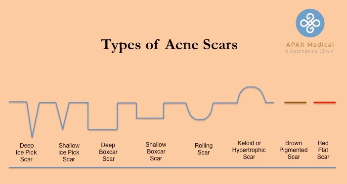 Types of acne scars for acne scar removal