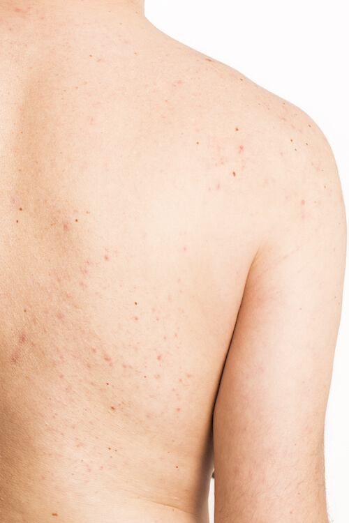 acne on mature  male back treatment infection
