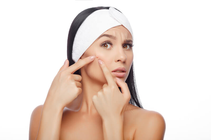 Acne treatment clinic Singapore