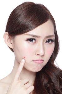 acne prone skin treatments singapore