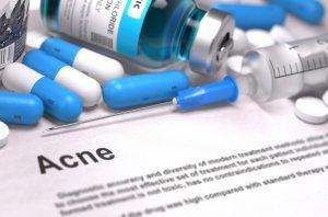 acne-creams