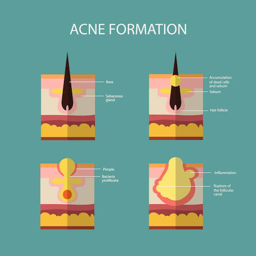 Acne treatment and what leads to acne