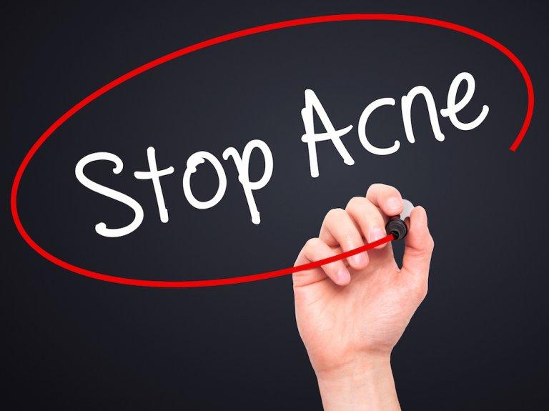 Stop Acne