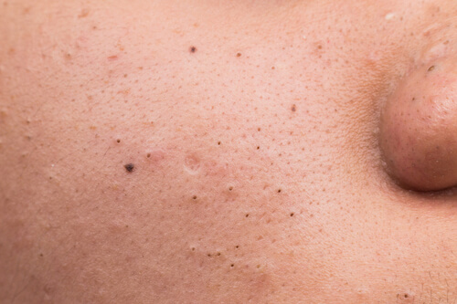 what-causes-blackheads
