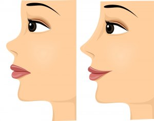 nose threadlift before and after