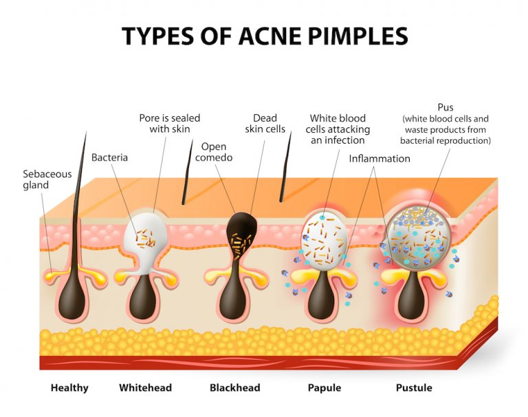 Blackheads & Whiteheads Treatment Singapore | APAX Medical
