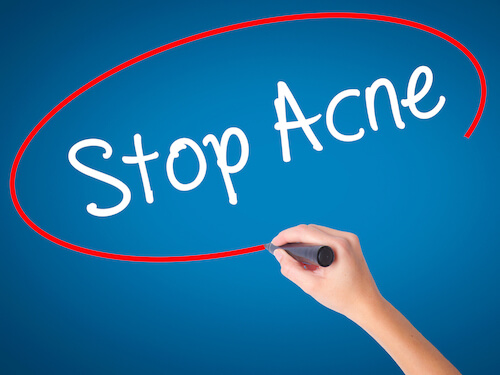 what-causes-acne