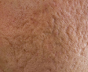 acne scar removal for rolling scar type