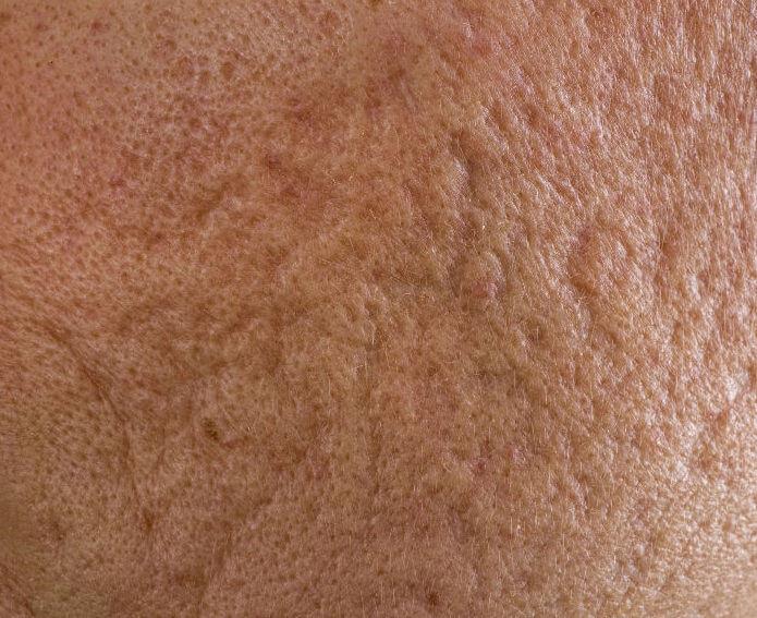 what-caueses-acne-scars