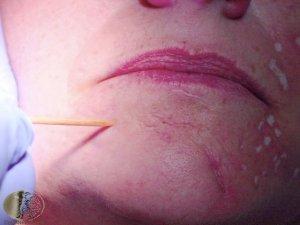 tca cross acne scars procedure being performed.