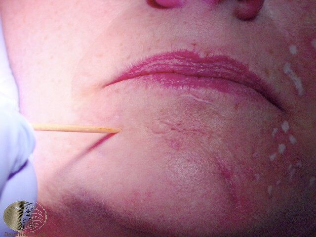 tca cross acne scars procedure being performed.