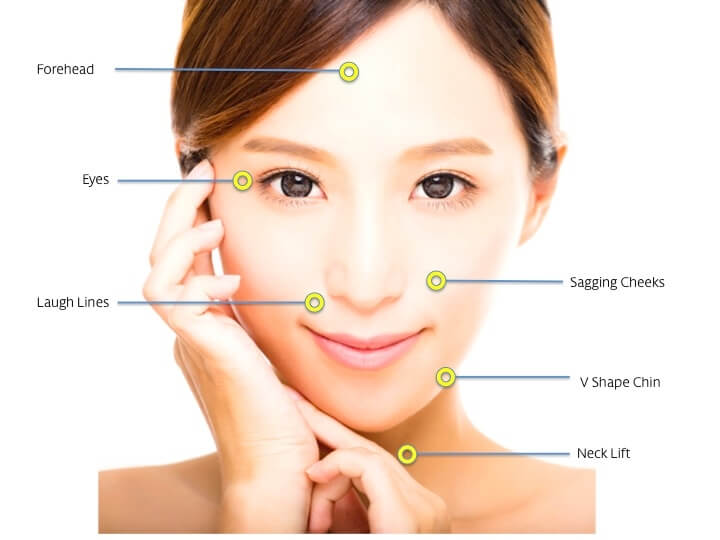 Face Thread Lift Singapore | Facelift Thread Singapore | APAX