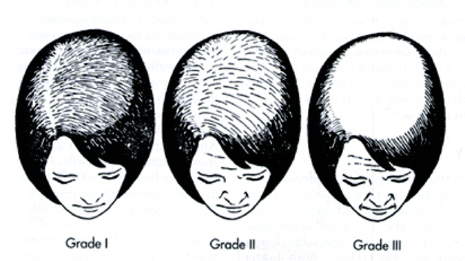 hair-regrowth