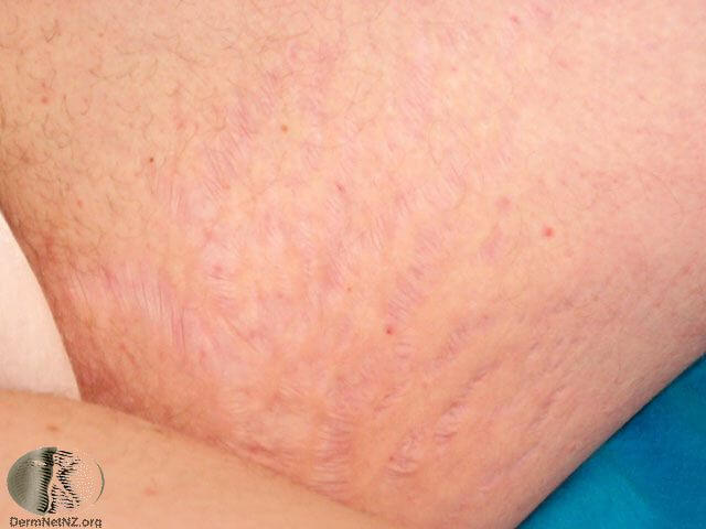 stretch-marks-removal