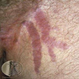 stretch-marks-removal