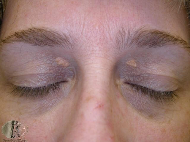xanthelasma-removal