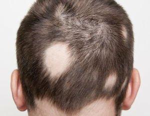 alopecia areata treatment singapore