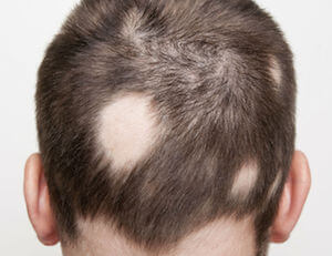 alopecia areata treatment singapore