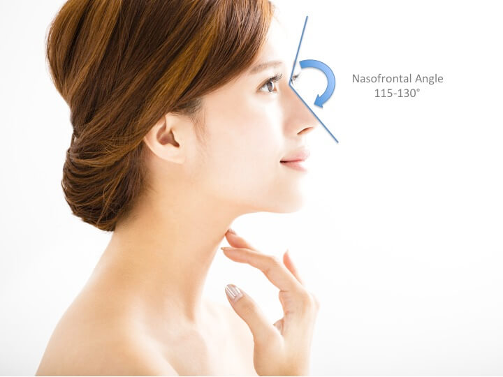 Ideal nose angles for nose threadlift procedure