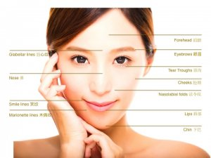 fillers-treatment