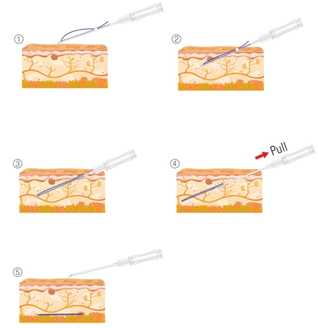 Threadlift procedure before and after