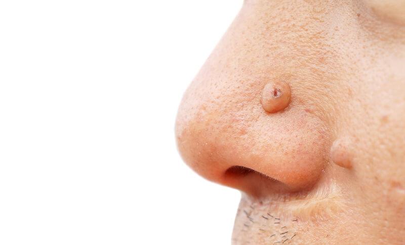 mole-removal-surgery