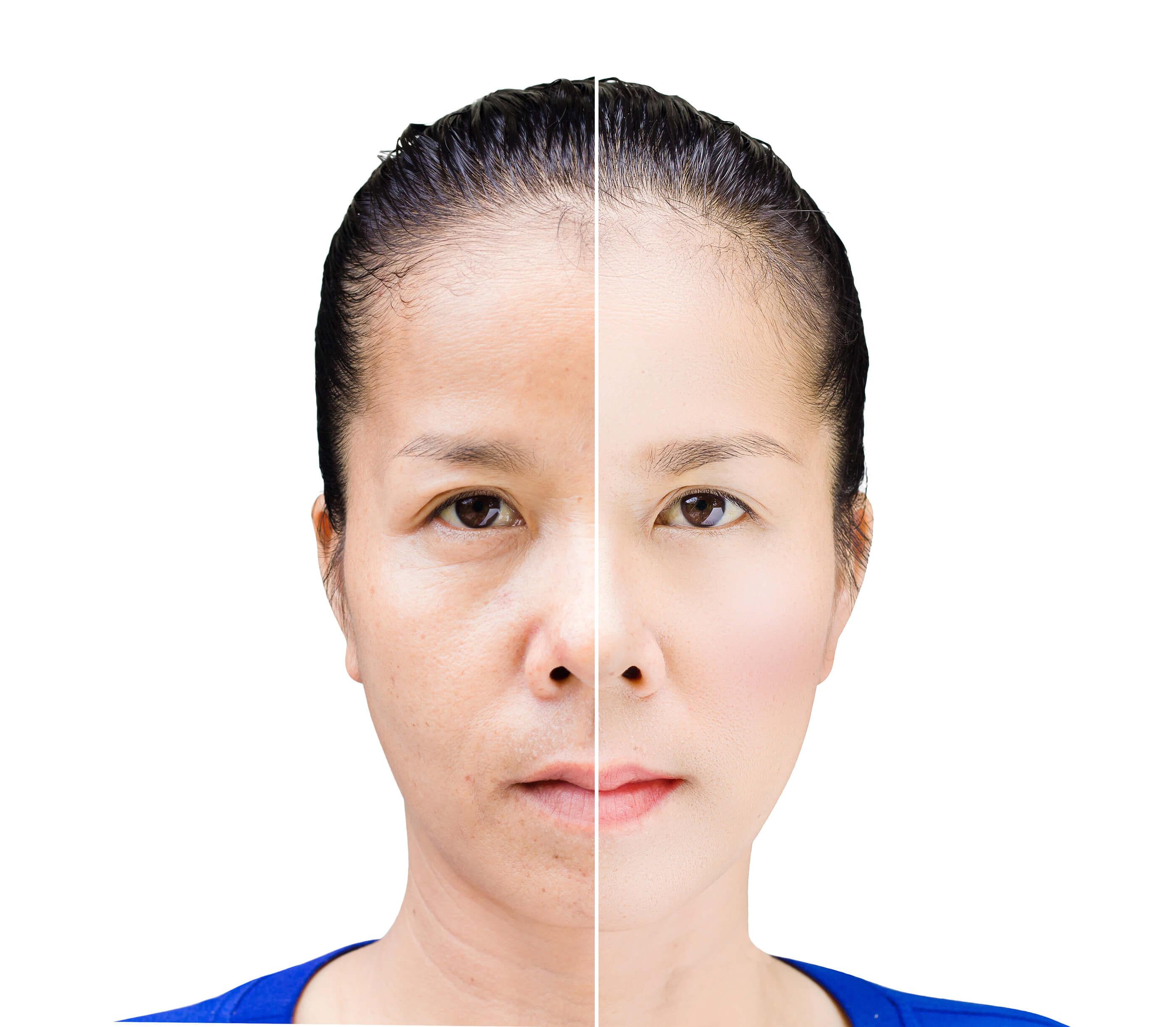 美丽的亚洲女人之前和之后润饰的脸