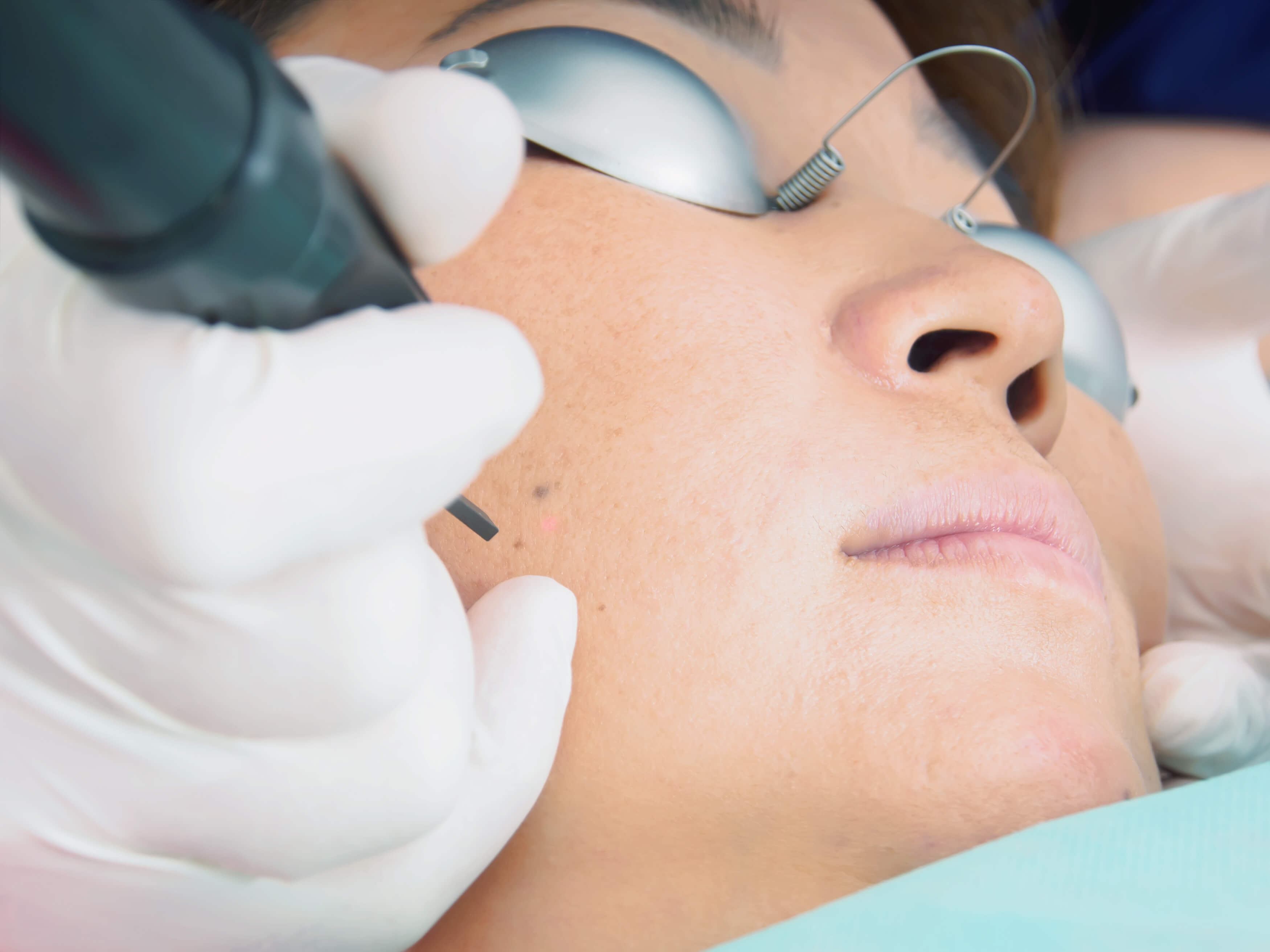 Asian woman patient on laser procedure skin resurfacing in aesthetic medicine
