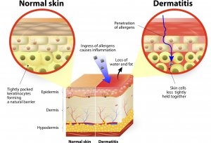 what-is-eczema