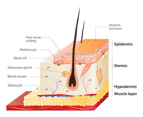 skin-pigment-removal