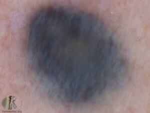 Mole Removal Surgery Apax Medical Amp Aesthetics Clinic