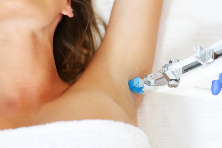 treatment-of-excessive-sweating
