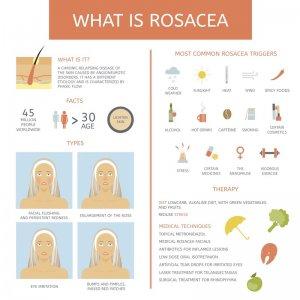 rosacea treatment in Singapore
