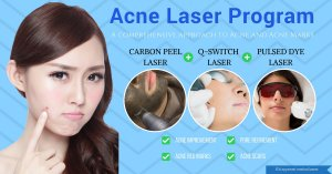 treat acne marks and scars with the acne laser program