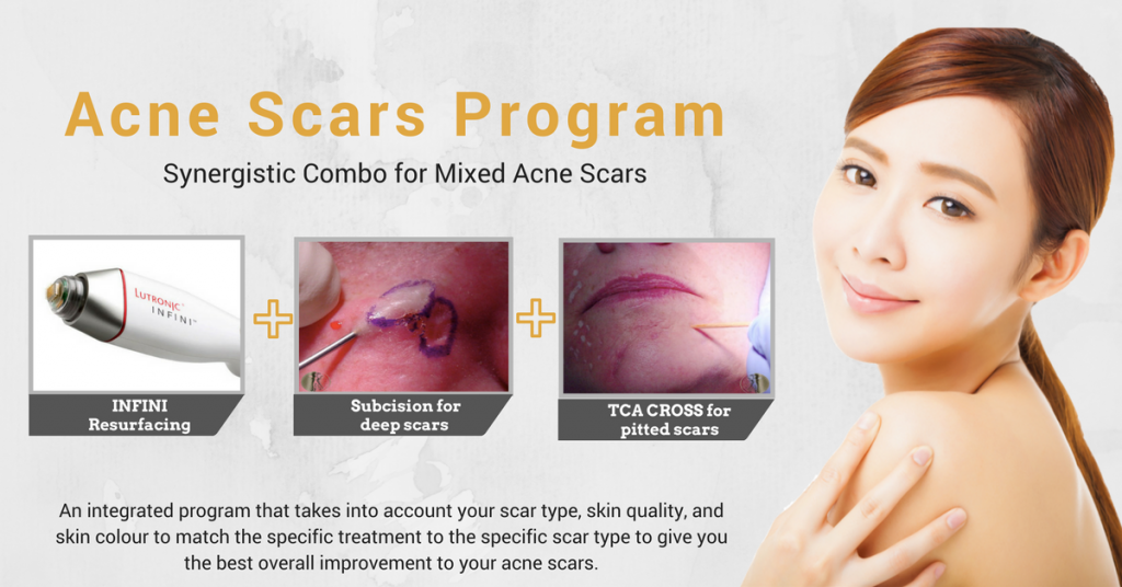 acne scar removal program singapore