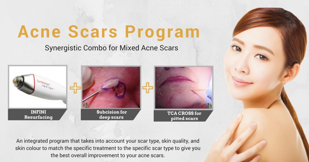 acne scar removal program singapore