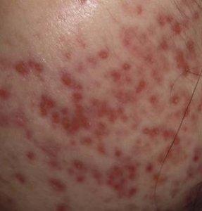 3 Ways To Improve Acne Scars | APAX Medical & Aesthetics ...