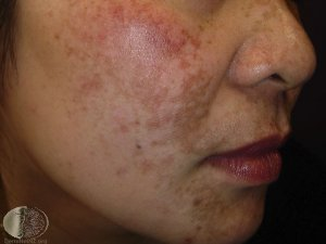 melasma treatment clinic in Singapore