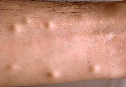 multiple skin cysts on arm