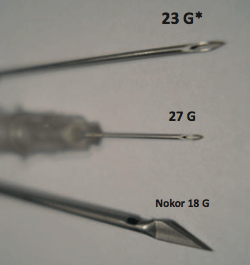 needles for subcision acne scars