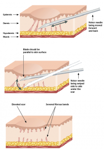subcision using nook needle illustration