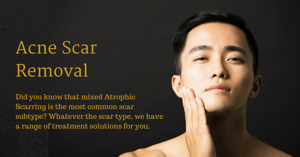 acne scar removal specialist in singapore