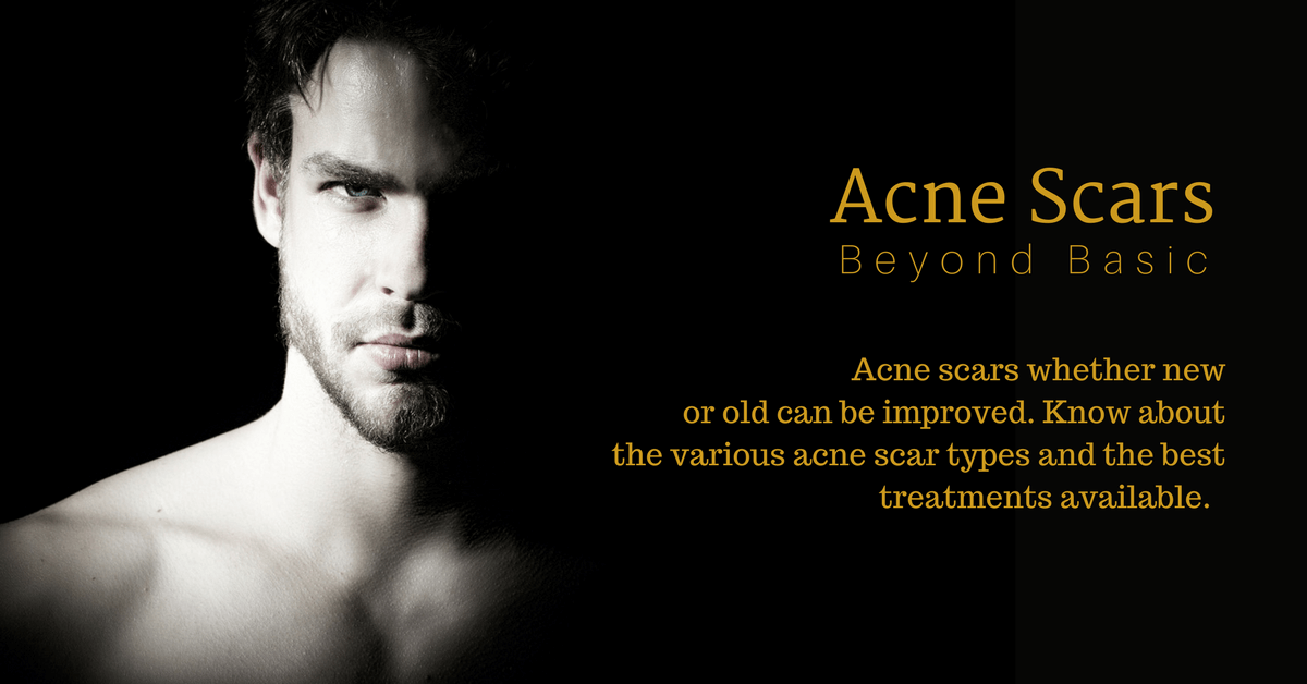 different acne scar types and treatments in singapore