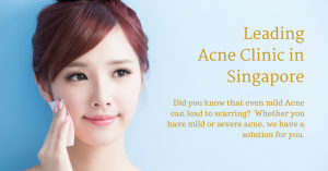best acne clinic in singapore