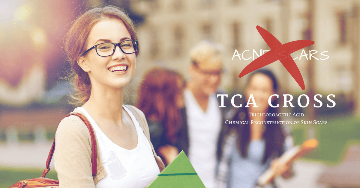 acne scar removal with TCA CROSS in singapore