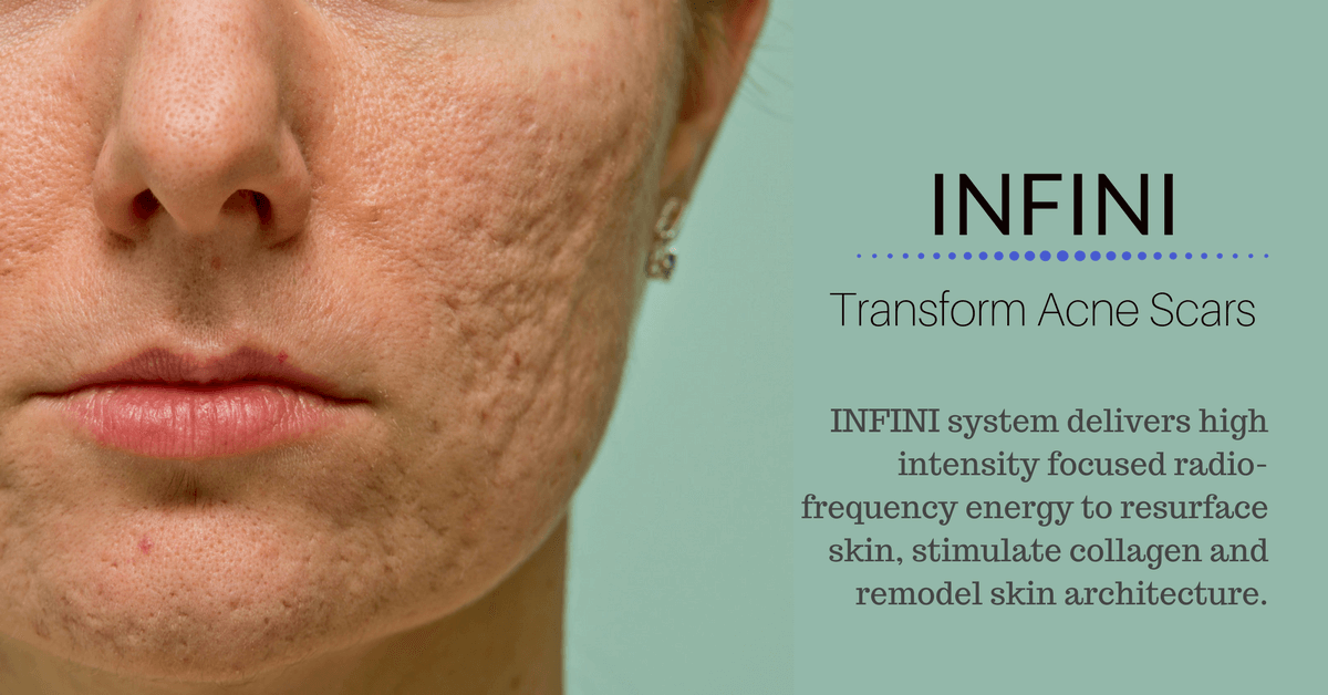 INFINI ance scars treatment in Singapore