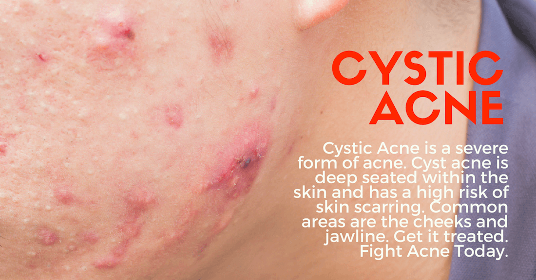 cystic acne treatment clinic in Singapore