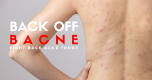 best back acne treatment in Singapore